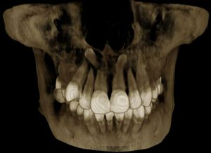 Check for extra teeth, Maxillary impacted canine