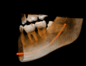 Impacted tooth localization